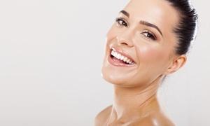 Starlight Day Spa: Up to 50% Off Organic or Diamond Peel Facial at Starlight Day Spa