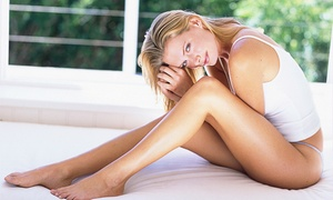 New Image Anti Aging & Cosmetic Laser Center: Two or Four Spider-Vein-Removal Treatments at New Image (Up to 84% Off)