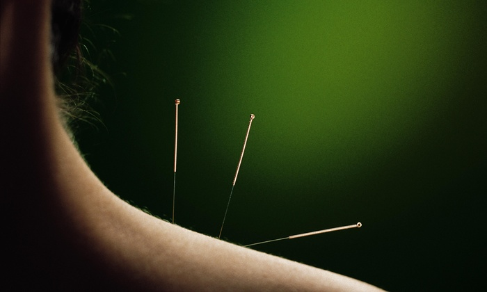 Oasis Acupuncture and Total Wellness - Tulsa: An Acupuncture Treatment and an Initial Consultation at Oasis Acupuncture and Total Wellness (73% Off)