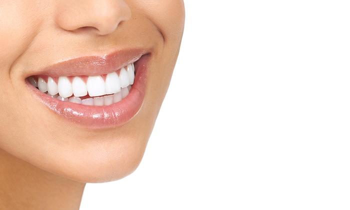White Smiles AZ - Downtown Scottsdale: $81 Off  20 Minute Teeth Whitening Session at White Smiles AZ