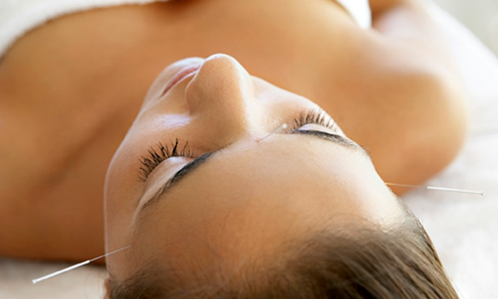 Heaven Scent - South London: $75 for an Acupuncture for Weight Loss Package at Heaven Scent ($320 Value)