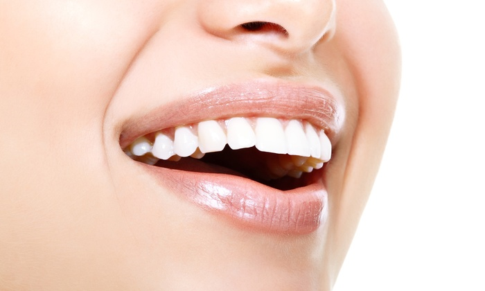 Trendy Smiles - Lanham - Seabrook: Two Teeth-Whitening Sessions for One or Two at Trendy Smiles (Up to 51% Off)