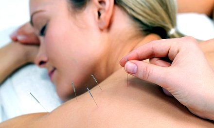 70-Minute Acupuncture Session and a Deep Tissue Massage at Ginkgo Health & Beauty
