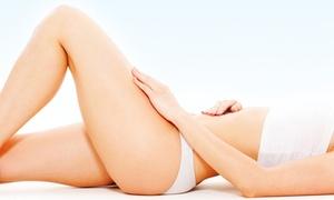 AC Beauty: Depilacja IPL na wybraną partię ciała od 39,99 zł w AC Beauty