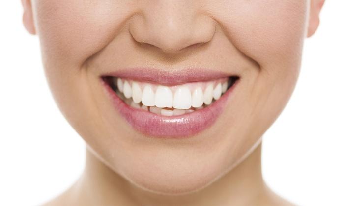 k dental office - k dental office: 自然な白さと強度を兼ね備えた、ハイブリッド素材を使用≪スーパーラミネートクラウン1本≫3枚まで利用可 @k dental office