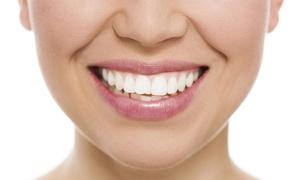 CLINICA DENTAL VISTALEGRE: 1 o 2 sesiones de blanqueamiento dental Led y limpieza bucal con ultrasonidos desde 49,95 €