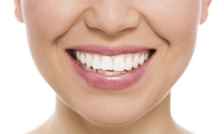 Hasta 6 implantes dentales de titanio con corona de porcelana y limpieza bucal desde 489 €