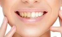 Kosmetisches Zahn-Bleaching, opt. mit Refresh in der Beautiful Smile Lounge (bis zu 64% sparen*)
