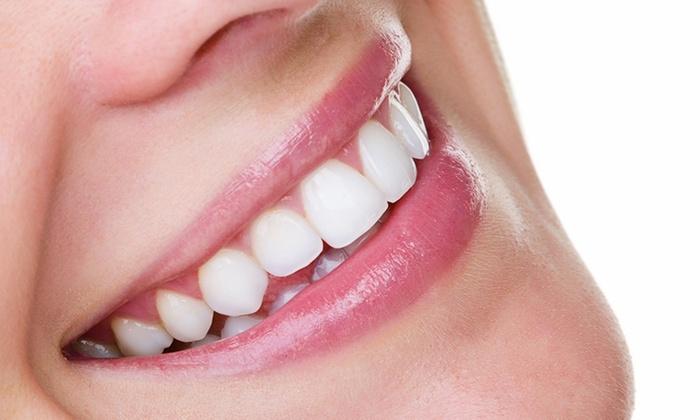 IMPACT - IMPACT: 【最大57%OFF】ナチュラルな白さの輝く歯へ。しみにくい溶剤を使用≪セルフホワイトニング/1回 or 3回 or 5回≫ @IMPACT