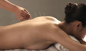 קוסטה נתנאל רפואה סינית מסורתית: קוסטה נתנאל - רפואה סינית מסורתית: דיקור וטיפול בצמחי מרפא באורך 45 דקות לאדם ב-45 ₪, לזוג ב-69 ₪ בלבד. גם בשישי
