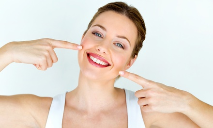 Sedute di sbiancamento dentale