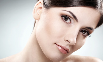 One or Two VeinGogh Facial Spider-Vein Treatments at Professional Image & Laser Care (Up to 56% Off)