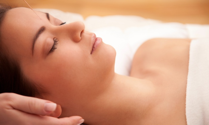 Berkley Acupuncture - Berkley Acupuncture: An Acupuncture Treatment and an Initial Consultation at Berkley Acupuncture (53% Off)