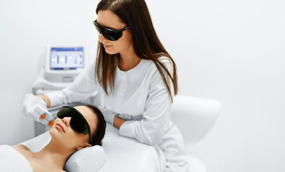 Up to 70% Off IPL Photofacial at Elite Med Spa
