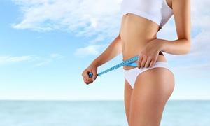 Endermologia LPG®: 1 zabieg na całe ciało za 99,99 zł i więcej opcji w Carolina Beauty Clinic (do -44%)