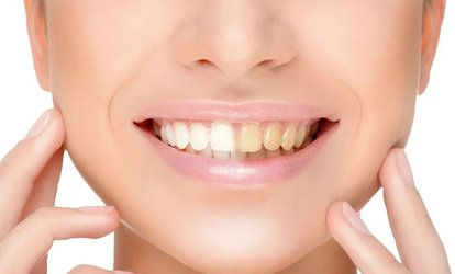 Kosmetisches Zahnbleaching optional mit Refresh in der Beautiful Smile Lounge (bis zu 71% sparen*)