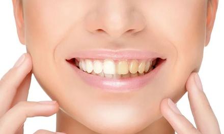 30 Min. kosmetisches Zahnbleaching bei Beyoutiful Haircare And Day Spa (65% sparen*)