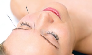 Holistic Touch Center: One or Three Facial-Rejuvenation Acupuncture Treatments at Holistic Touch Center (Up to 52% Off)