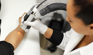 Primary Laser Skincare: Laser Hair Removal at Primary Laser Skincare (Up to 82% Off). Six Options Available.