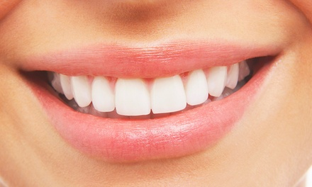 $360 for a TeethWhitening Treatment at Premier Cosmetic and Family Dentistry ($600 Value)