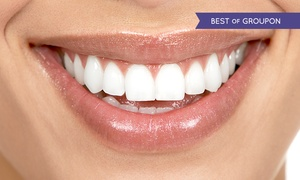 Actualize Clinics: Zoom Teeth Whitening (£99) With Scale and Polish (£119) at Actualize Clinics (Up to 74% Off)