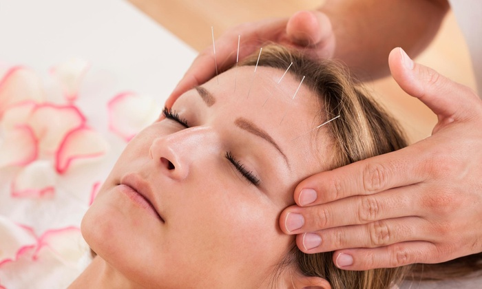 Mending With Gold Acupuncture - Glenwood Grove - North Iris: Up to 68% Off Facial Rejuvenation Acupuncture at Mending With Gold Acupuncture