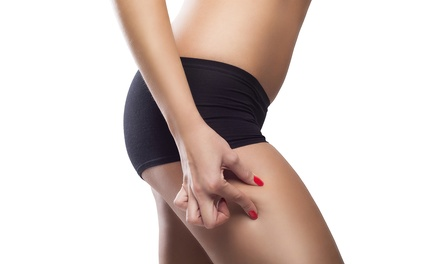 One, Two or Four 35-Minute Endermologie Treatments at Thighs By Design (Up to 52% Off)
