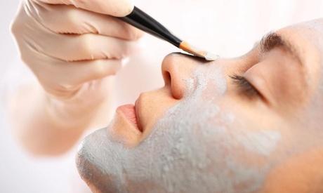 1 o 2 sesiones de peeling químico facial en Clínica The Beauty Secret