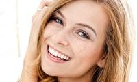 Visita odontoiatrica con smacchiamento air flow e sbiancamento led al centro Dental Service Jesi (sconto fino a 87%)