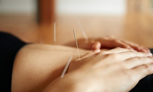 Back in Shape Chiropractic and Wellness Center: One, Three, or Six Acupuncture Sessions at Back in Shape Chiropractic and Wellness Center (Up to 67% Off)
