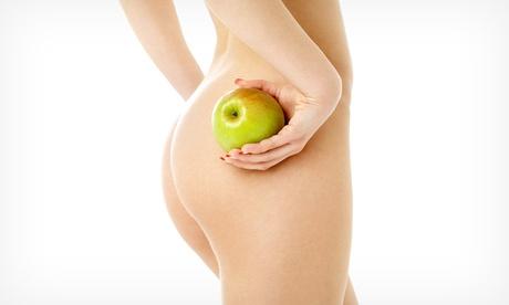 Sesión de tratamiento reductor con Crioplastia Selectiva Focal® en el abdomen por 99 € o en zona doble por 124 € Oferta en Groupon