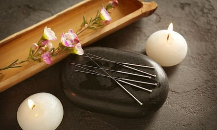 70-Min Acupuncture or 90-Min Acupuncture with Pressure Point Massage at The Pain Relief Center (Up to 47% Off)