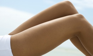 RG Pro Laser: Six Laser Hair Removal Sessions on Small, Medium, or Large Area at RG Pro Laser (Up to 85% Off)