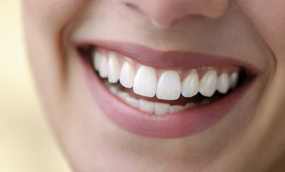 BriteSmile Teeth Whitening Treatment with a Consultation at Dentcare1 Smile (49% Off)