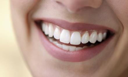 Una o dos férulas de descarga rígidas tipo Michigan con una limpieza bucal completa desde 79,95€ en G Dental
