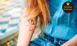Skull Tattoo Studio: 1 ou 2 sessões para remoção de tatuagem no Skull Tattoo Studio – Jaraguá