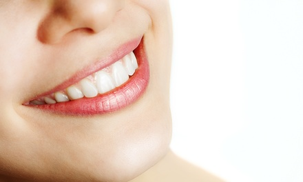 $59 for a Dental Exam,  X-Rays, Fluoride, and Cleaning at Lynnwood Dental Center ($337 Value)