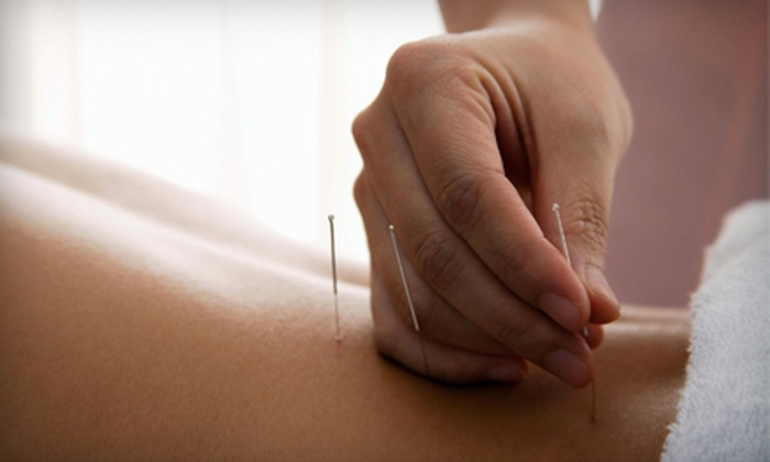 Cunningham Chiropractic - Hayden: $39 for a Consultation and Two Acupuncture Treatments at Cunningham Chiropractic in Hayden ($165 Value)