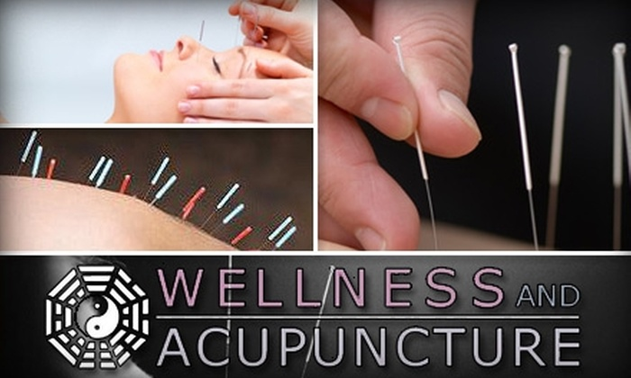 Wellness and Acupuncture - Coral Ridge: $38 for a Meridian Evaluation and Balance Method Acupuncture Treatment at Wellness and Acupuncture ($160 Value)