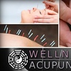 76% Off at Wellness and Acupuncture
