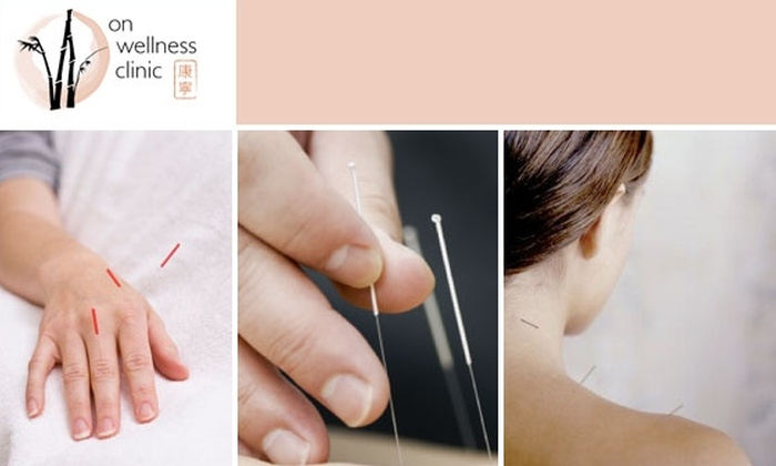 On Wellness Clinic - Downtown: $20 Acupuncture Session at On Wellness ($40 Value)