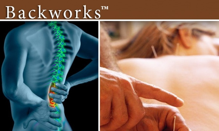 Backworks - Downtown: $49 for Two Acupuncture Sessions at Backworks ($130 Value)