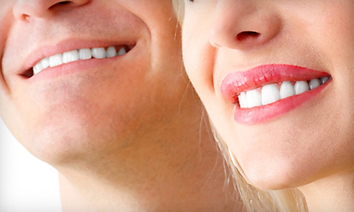 Da Vinci by Lien - Montavilla: $99 for In-Office Teeth Whitening at Da Vinci by Lien ($199 Value)