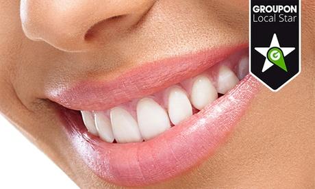 1 o 2 sesiones de blanqueamiento dental LED y limpieza bucal con fluorización desde 59 €