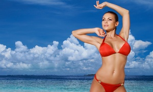 FUN by Michelle: Six Laser Hair-Removal Treatments on a Small, Medium, or Large Area or the Full Body (Up to 90% Off)