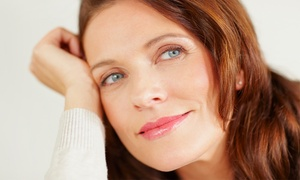 Calista Skin & Laser Center: Microdermabrasion with Optional Micro-Needling at Calista Skin & Laser Center (Up to 63% Off). Three Options.