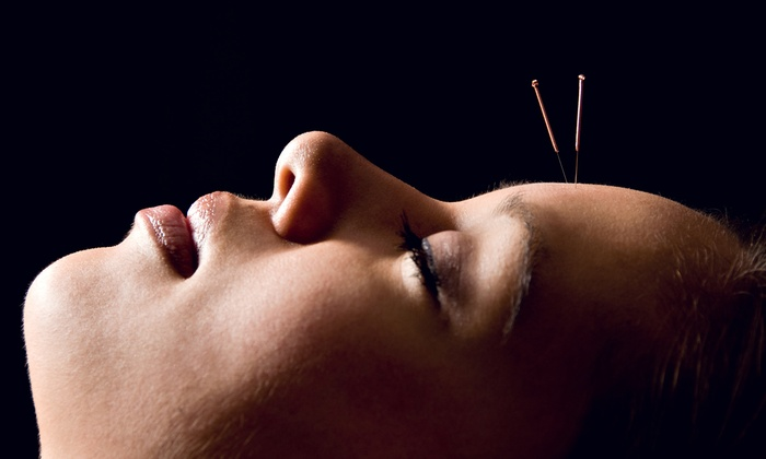 Marchand Orthopedic Acupuncture - Multiple Locations: One or Three Acupuncture Sessions with Initial Consultation at Marchand Orthopedic Acupuncture (Up to 75% Off)