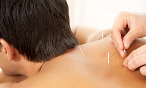 Natural Way Health Center: One or Three Acupuncture Sessions at Natural Way Health Center (Up to 81% Off)