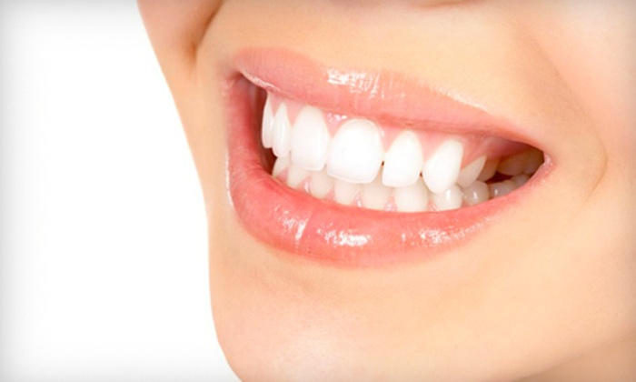 Cheri W. Cunningham, DMD Family Dentistry - Gardendale: $79 for a Dental-Care Package with Teeth Whitening and Full Dental Exam at Cheri W. Cunningham, DMD Family Dentistry ($282 Value)