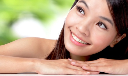 $65 for Microderm, PCA Peel, and Acupressure Massage from Laura Hassel at Ooh La La Skin & Spa ($180 Value)